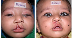 cleft-lip-&-palate-repair02